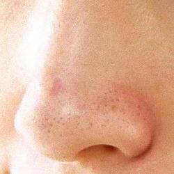 鼻のぶつぶつが気になる女性
